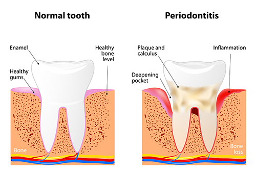Diagram of Periodontitis in a Tooth. Dentist in Sun City AZ